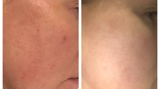 WOW fusion before and after toxing rosac
