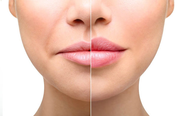 Lip-Injections-and-Fillers.jpeg