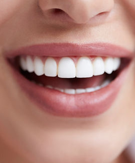 Canva%20-%20Healthy%20white%20smile%20close%20up.%20Beauty%20woman%20with%20perfect%20smil
