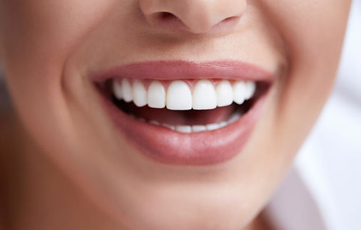 Canva%20-%20Healthy%20white%20smile%20cl