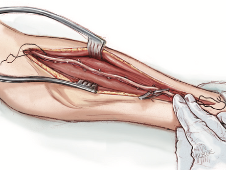 Análise sobre competição de fluxo e uso da artéria radial para revascularização do miocárdio.