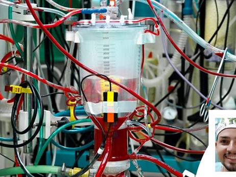 Componentes do circuito de circulação extracorpórea
