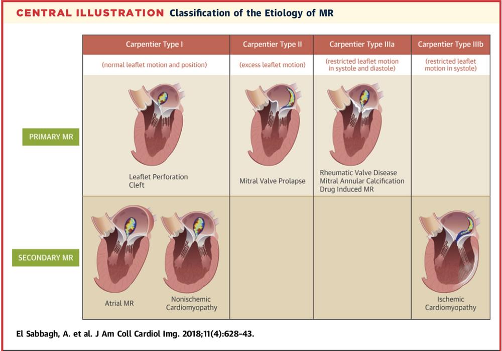 JACC Cardiovasc Imaging. 2018 Apr;11(4):628-643. doi: 10.1016/j.jcmg.2018.01.009.