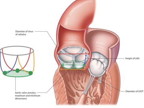 Qual a definição de anel aórtico pequeno e a sua importância para o cirurgião?