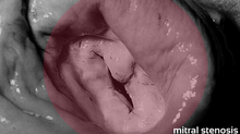 Características de estenose mitral importante: o que você precisa saber?