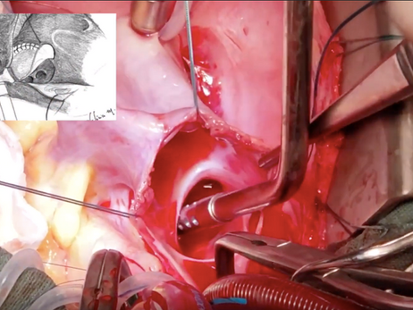 CIA tipo seio venoso superior: detalhes que o cirurgião deve saber antes de operar.
