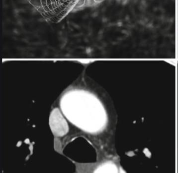 05 dicas para identificar a falsa luz da aorta dissecada na tomografia com contraste