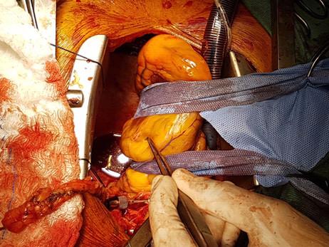 04 Motivos que tornam a cirurgia de revascularização do miocárdio quase sempre a melhor estratégia