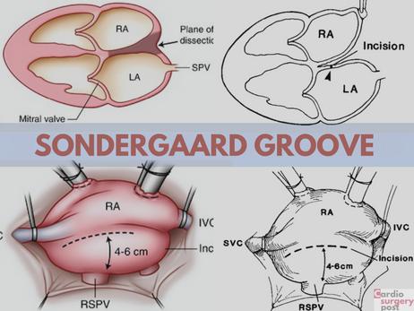 Dissecção do sulco interatrial de Sondergaard: uma velha e ótima maneira de melhorar a exposição da