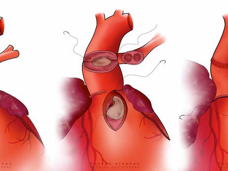 Fatores de risco modificáveis no reparo do truncus arteriosus: quais são os mais relevantes?