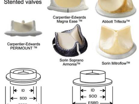 Escolha do tamanho da prótese valvar aórtica: como fazer em 03 passos?