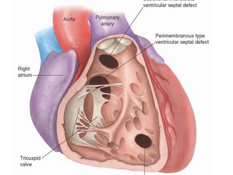 Comunicação interventricular: análise das indicações cirúrgicas
