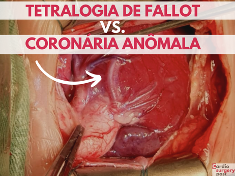 Opções estratégicas na tetralogia de Fallot com artéria coronária anômala. Conheça o plano B.