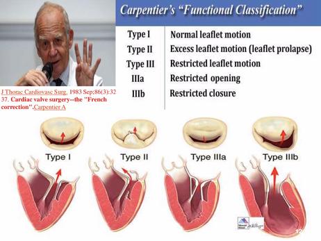Qual a importância da classificação de Carpentier na cirurgia da valva mitral?