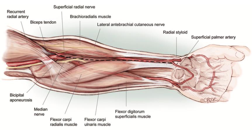 Ref: Blitz A, Osterday RM, Brodman RF. Harvesting the radial artery. Ann Cardiothorac Surg 2013;2(4):533-542. doi: 10.3978/j.issn.2225-319X.2013.07.10