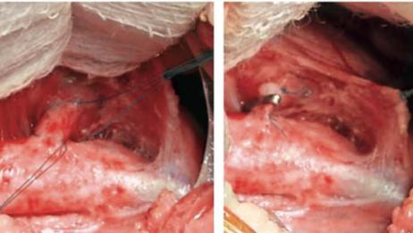 Dicas práticas sobre a cirurgia de correção da persistência do canal arterial