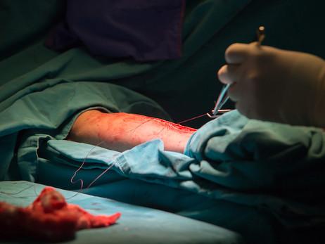 ACC 2020: Os vieses da meta-análise que comparou artéria radial vs. safena para revascularização do