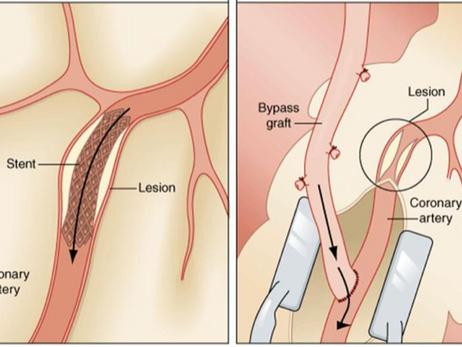Revisão dos principais estudos sobre Stent versus Cirurgia na lesão de tronco da coronária esquerda