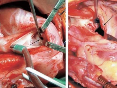 Quando é o melhor momento para cirurgia corretiva em pacientes com Tetralogia de Fallot?