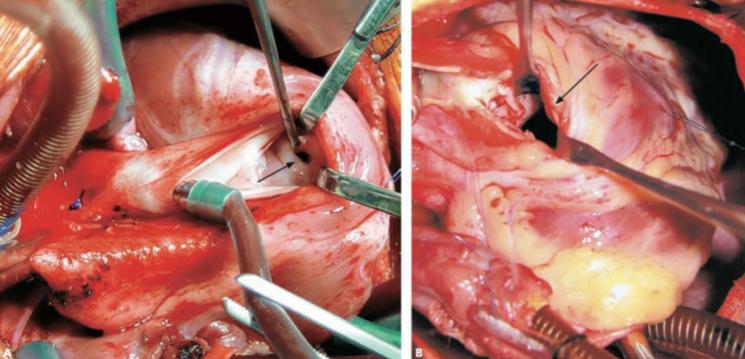 Imagem de uma cirurgia para correção de Tetralogia de Fallot