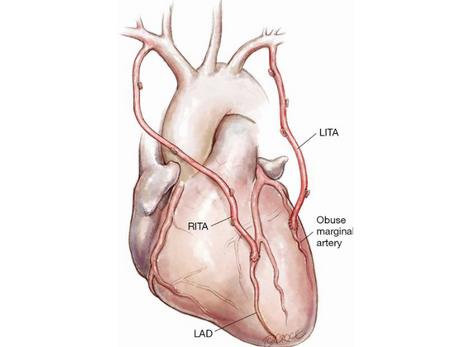 ART Trial 10 anos: a dupla mamária é inútil na revascularização do miocárdio?