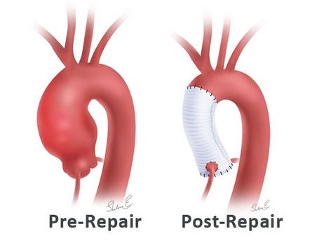 Aneurisma da aorta ascendente: quando operar?