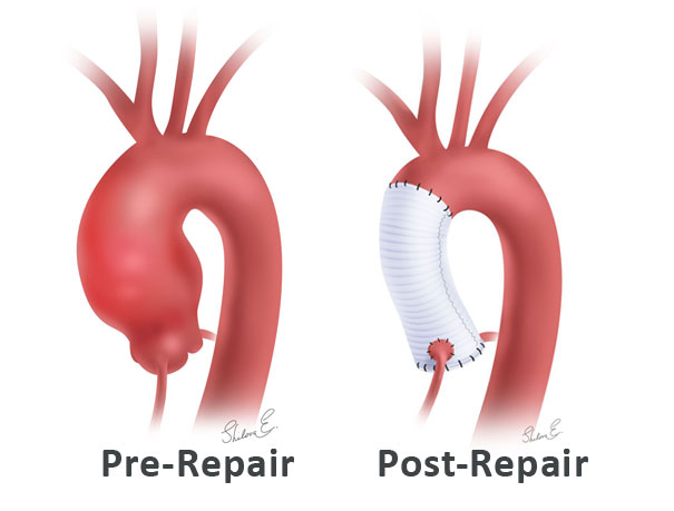 www.mainlinehealth.org/conditions-and-treatments/treatments/aortic-root-replacement