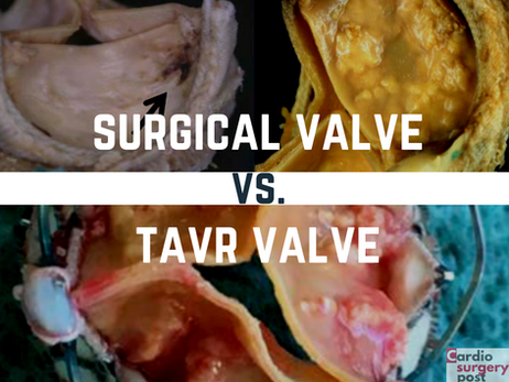 Durabilidade das próteses transcateter versus biopróteses cirúrgicas: qual possui a maior vida útil?