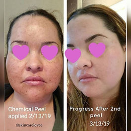 Double Tap ❤_Before and After Progress P