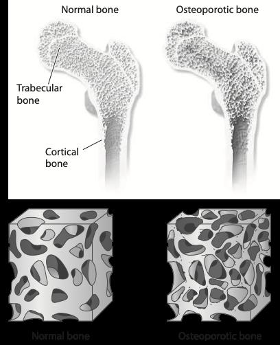 Osteoporosi e dieta