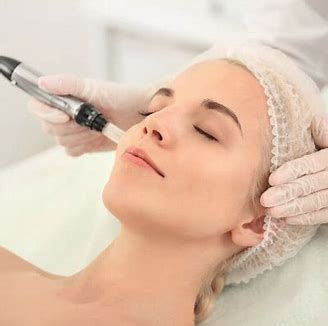 Micro-Needling Therapy