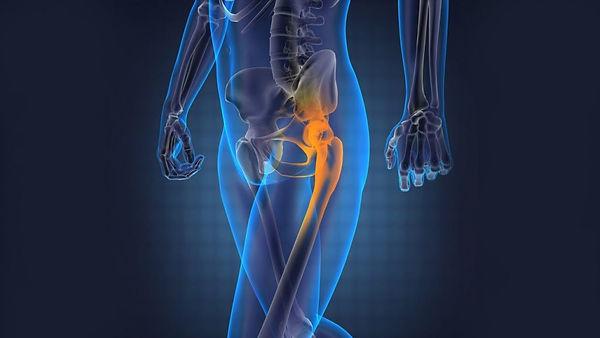 hip-pain-1024x576.jpg