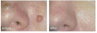benign-mole-removal-skin-portland.png