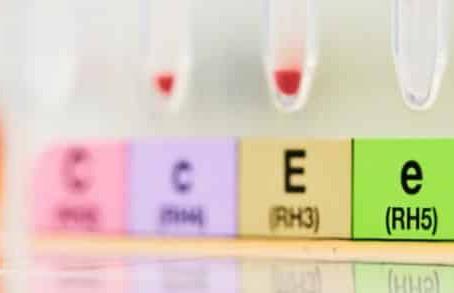 Études corrélatives entre la présence de récepteurs de l'hormone thyrotropine