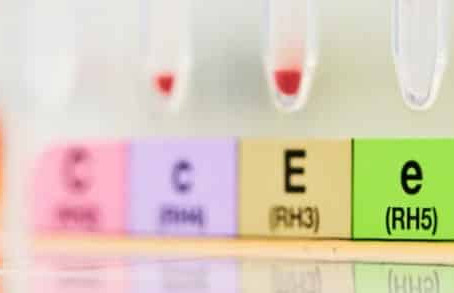 Liaison du (+) – PN 200-110 aux hypophyses de rat et aux hypophysaires humaines