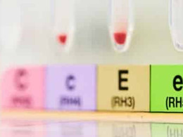Régulation antagoniste in vitro et in vivo par l'estradiol et la progestérone