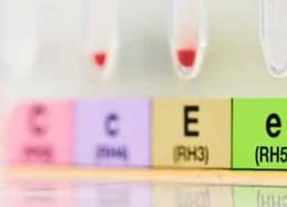 Équilibre altéré entre l'hormone de libération de thyrotropine et la dopamine