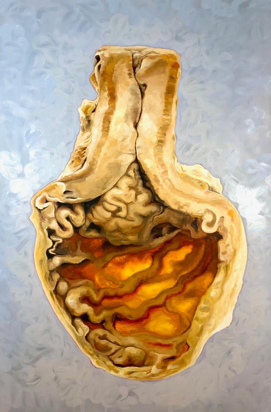 Stomach Preservation (Pathological Sample of Esopheogeal Tumor, 1950)