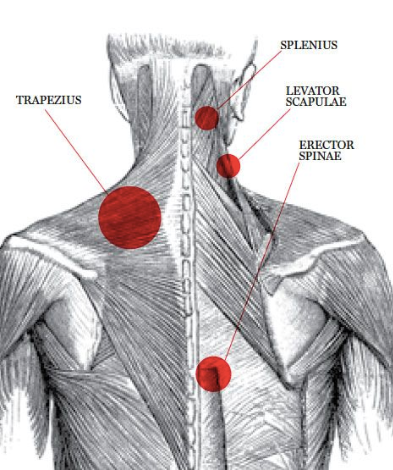 Your shoulders could be a pain in the neck!