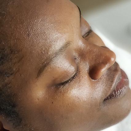 Post-Microderm Facial