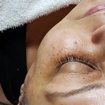 Derma-Glow Facial