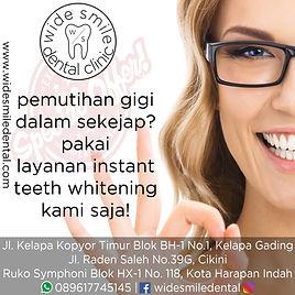 teeth whitening bleaching.jpg
