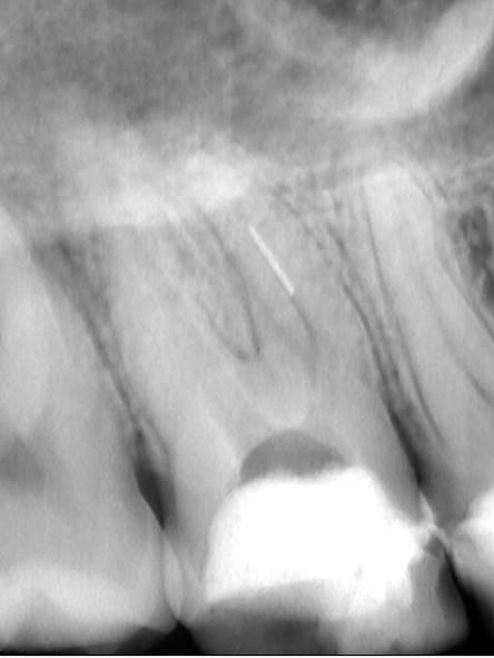 Primer zalomljenega instrumenta v MB korenini zoba 17