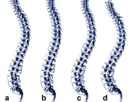 Importance of Spinal Alignment