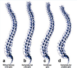Sagittal spinal alignment
