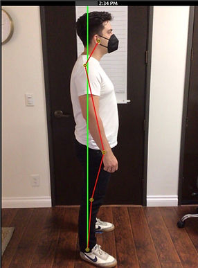 Lateral Posture Pre.jpg