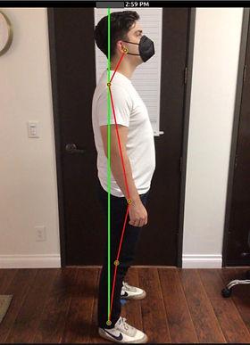 Lateral Posture Post.jpg