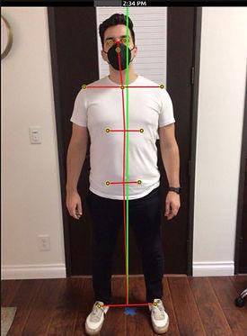 Frontal Posture Pre.jpg