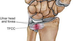 你已站在懸崖邊?關節受傷前有預兆(1) -手腕三角軟骨受傷