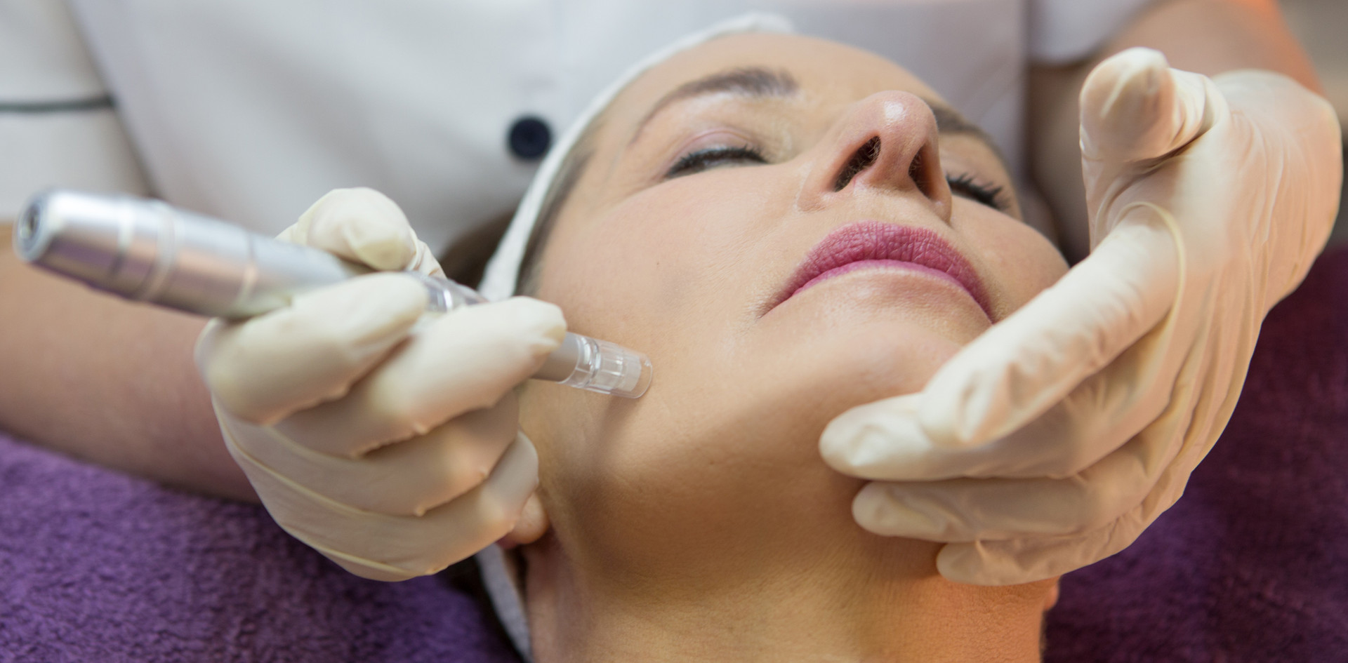 Microneedling/Collagen Induction Therapy